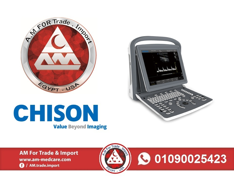 AM for trade & import in now the exclusive agent for Chison ECO3 ultrasound.